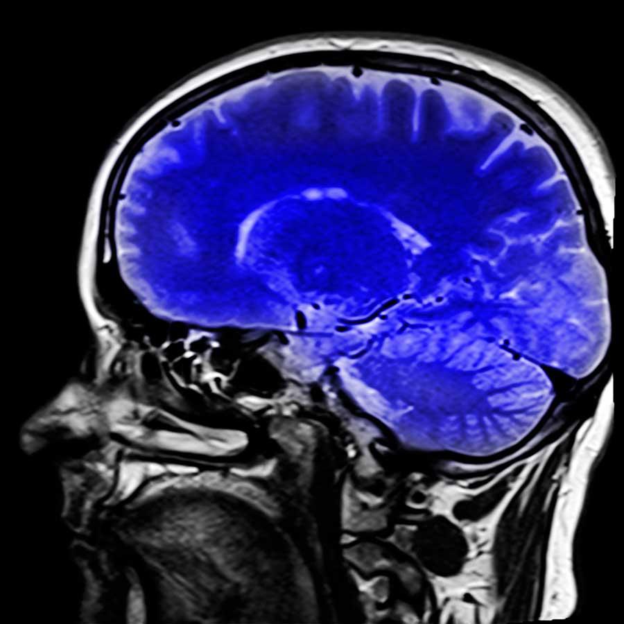 Image: Biomarcadores para identificar la respuesta al fármaco IFN-beta en Esclerosis Múltiple